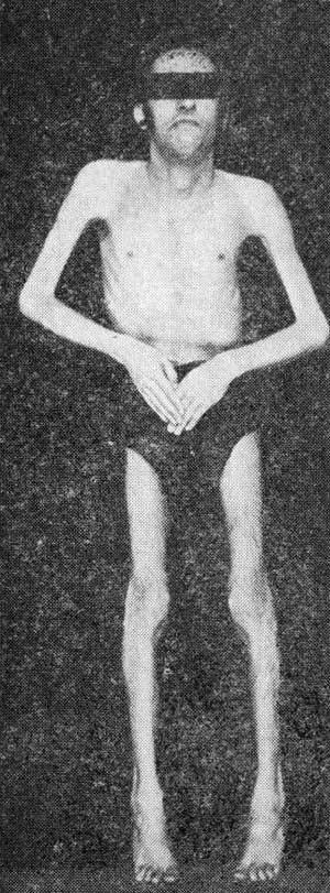 Х-Сцепленная миодистрофия Роттауфа у больного Б-ского. Грубые ретракции, особенно в мышцах шеи, контрактуры в локтевых и голеностопных суставах. Диффузная атрофия мышц.