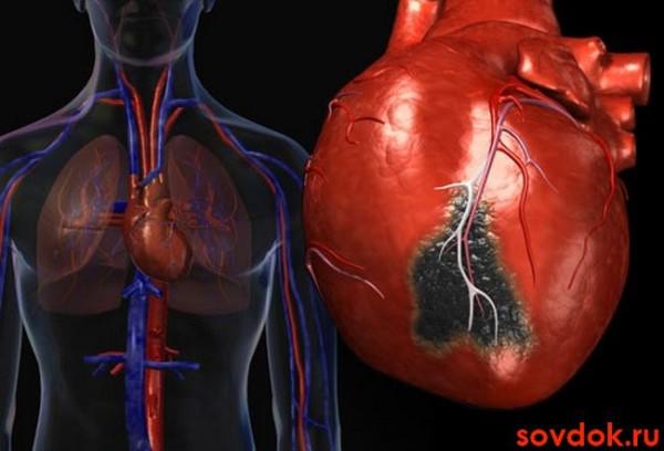 инфаркт-миокарда