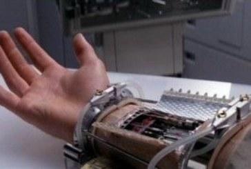 «Бионические» протезы: какие органы сегодня можно подменить электроникой
