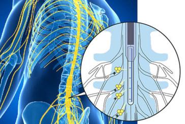 Ученые изобрели «чудо-насос», который способен избавить от назойливой хронической боли