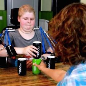 muscular-dystrophy-robotic-arm-2