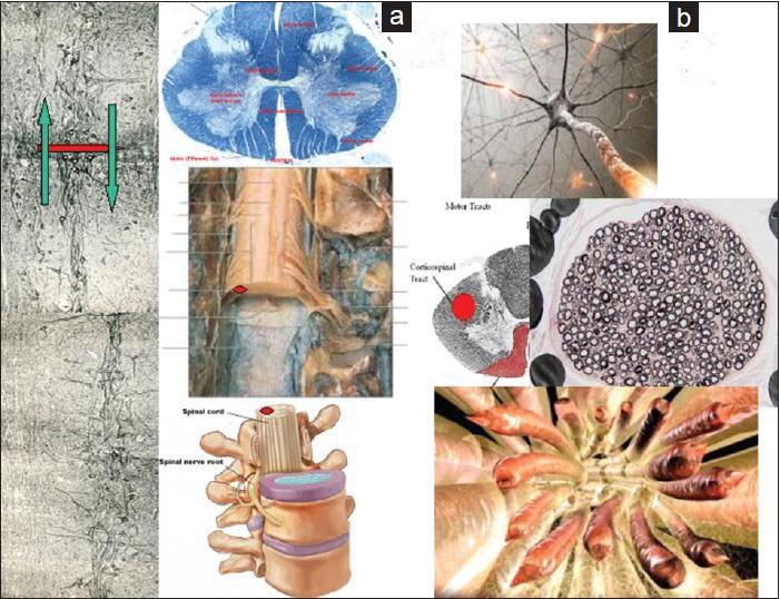 Иллюстрация к статье Канаверо Изображение: surgicalneurologyint.com (a): Срез на спинном мозге обезьяны. Наноразмерность среза показана на схеме справа (b): Визуализация разрезанного коркового-спинномозгового пути и его аксонов