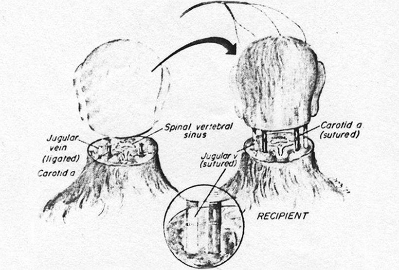 Схематическое изображение опыта Уайта с обезьянами Изображение: surgicalneurologyint.com