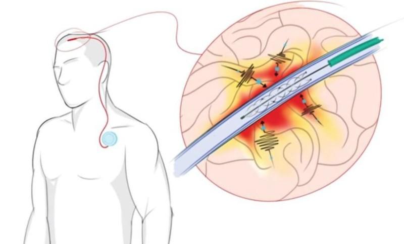 Устройство имплантируется в тело посредством простой и безопасной процедуры процедуры (иллюстрация University of Melbourne).