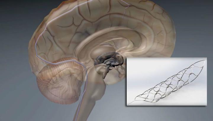 Устройство размером со спичку (справа) имплантируется в кровеносный сосуд (иллюстрация University of Melbourne).