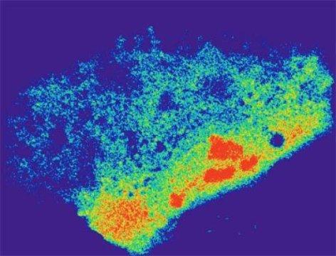Клетка, несущая систему RCas9, способную детектировать распределение мРНК бета-актина в цитоплазме. (фото: UC San Diego Health)