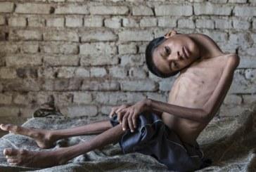Мальчик с невероятной шеей спасен врачами