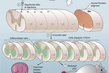 Стволовые клетки оказались средством от нейропатической боли