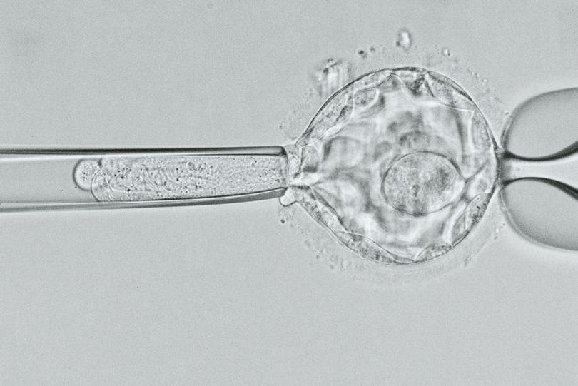 Прежде чем эмбрионы попали в матку, была проведена тщательная преимплантационная генетическая диагностика (ПГД) — проверка, позволяющая отобрать лишь здоровых зародышей. По подсчетам Илана Тур-Каспа, доктора из Института репродуктивной генетики и репродукции человека (Огайо), проводившего операцию, ПГД поможет сократить расходы на лечение муковисцидоза на 2,2 миллиарда долларов в год.