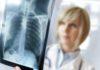 Здоровье костей при мышечной дистрофии Дюшенна