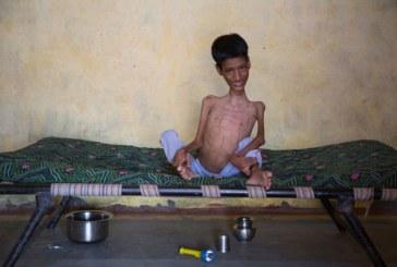 В Индии, не смотря на удачную операцию, скончался Махендра Ахирвар