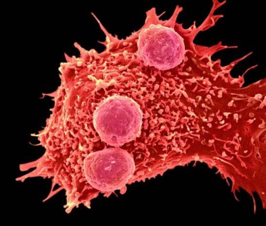 Технологию CRISPR-Cas впервые применили для лечения онкозаболеваний