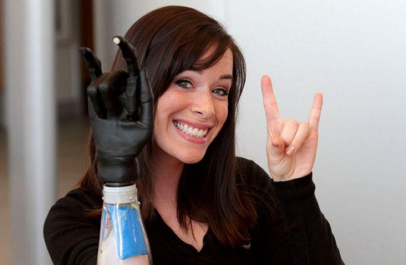 Не такая как все: 5 смелых девушек с инвалидностью, которые не боятся публичности