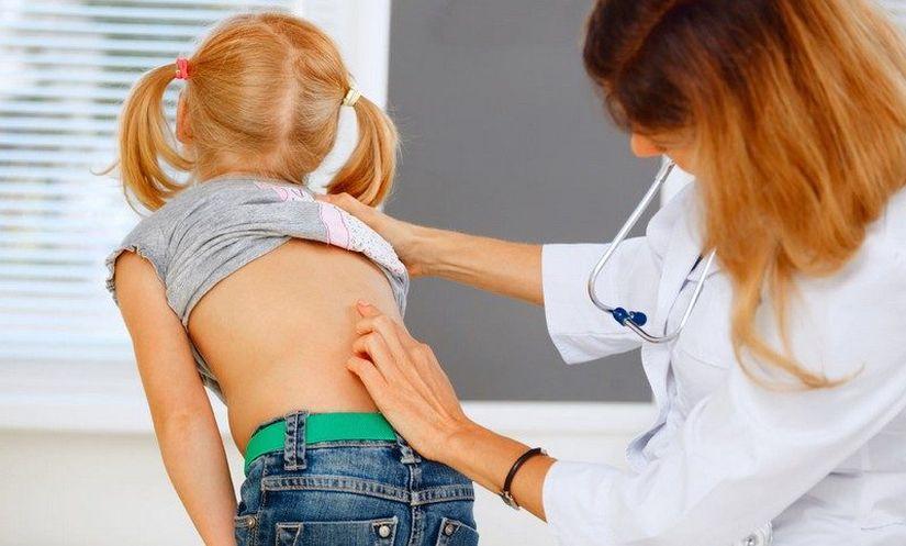 Лечение врожденных деформаций позвоночника у детей