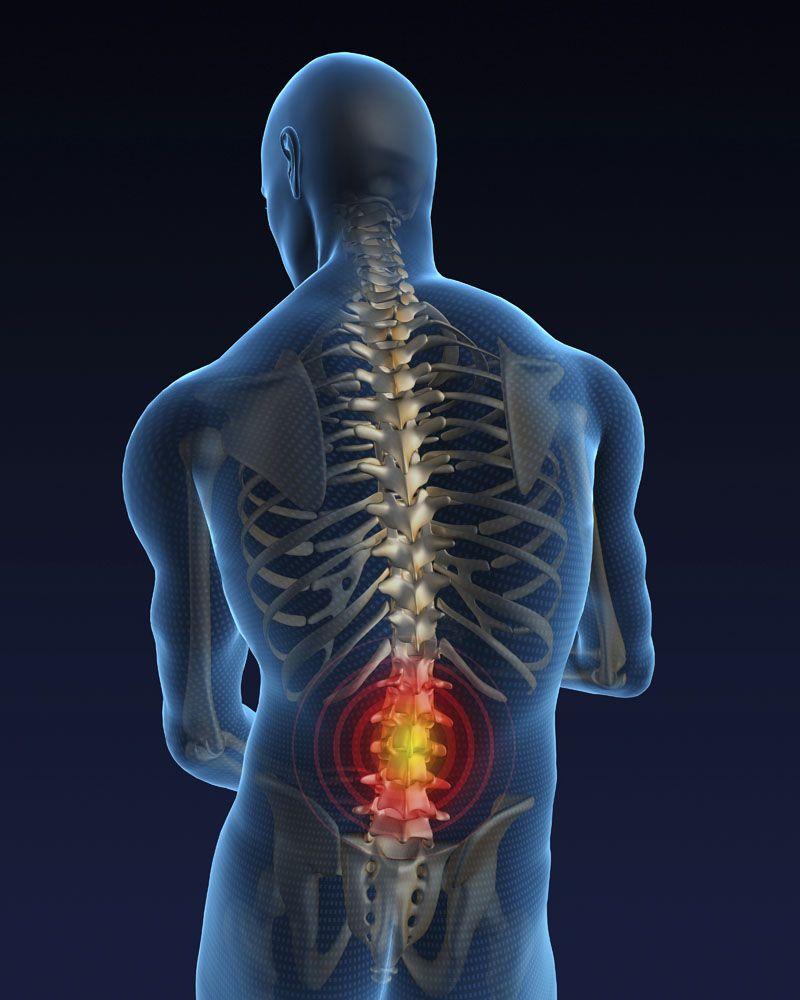 Имплантация стволовых клеток при при спинальной травме