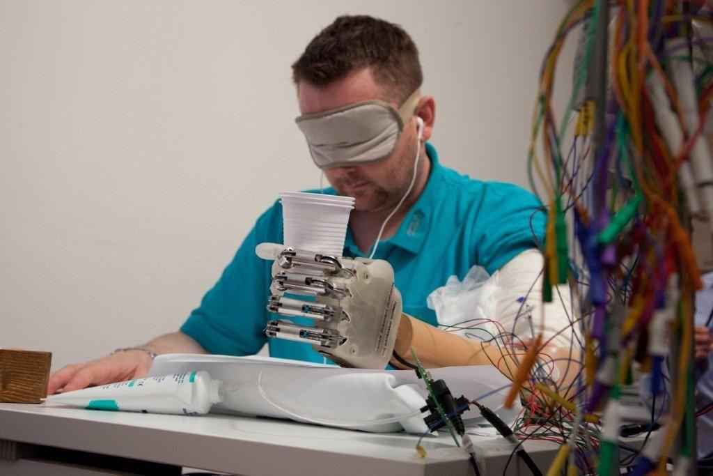 Создан первый в мире протез руки с чувствительными пальцами