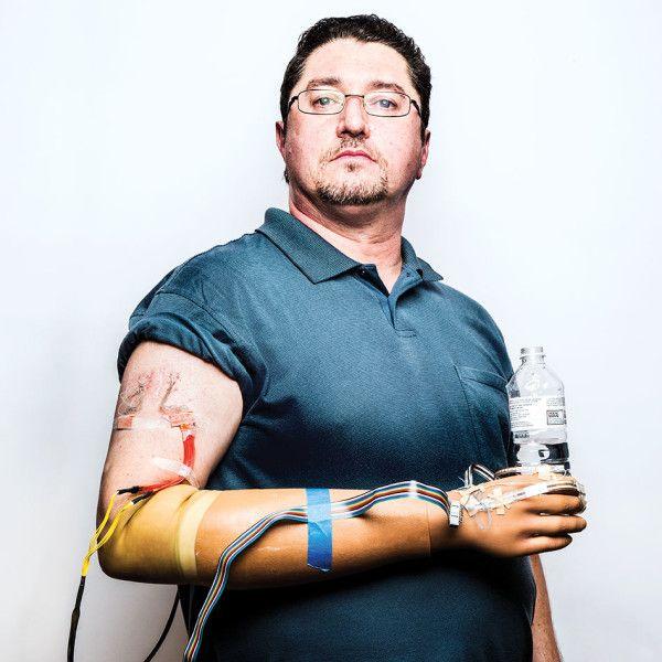 Игорь Спетик и его новая рука (здесь и ниже фото Ryan Donnell).