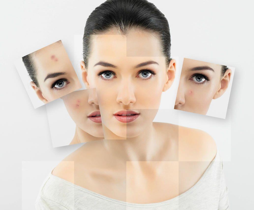 На лице написано: о каких болезнях расскажет кожа