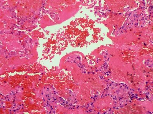 Синдром Гудпасчера — редкое аутоиммунное заболевание, при котором антитела атакуют легкие и почки. На иллюстрации показано кровотечение легочной ткани. Фото: Shutterstock