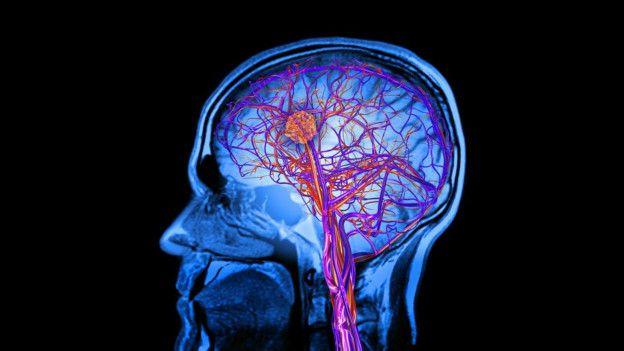 На снимках головного мозга было видно, как прием плацебо активизировал те участки, которые отвечают за контроль над стрессом и болью