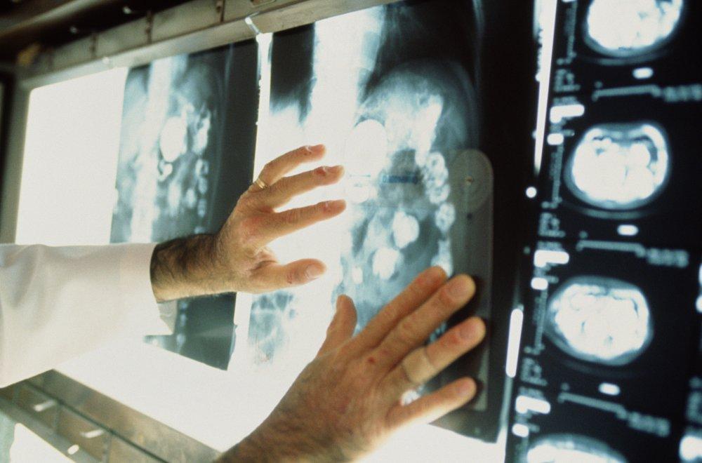 """Прошел медкомиссию и рентген, а через 3 месяца умер от рака. Родные: """"Зачем нас тогда облучают?"""""""