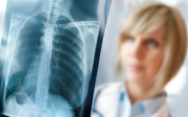 Взаимосвязь между минеральной плотностью костной ткани и сердечно-сосудистой функции при мышечной дистрофии Дюшенна