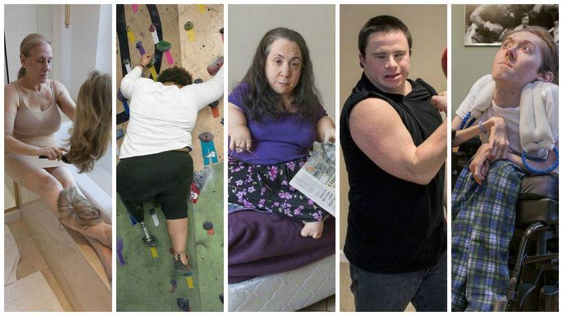 Сильные люди с редкими заболеваниями в серии фотографий Софи Клафтер