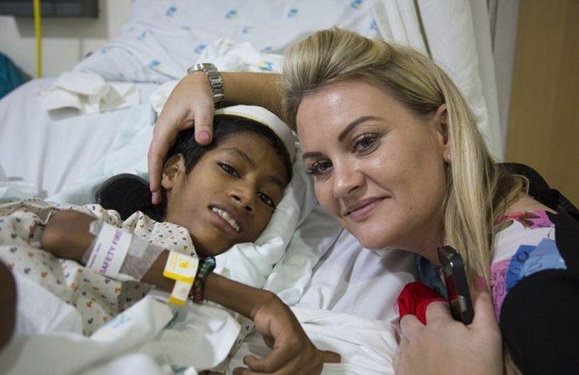 Мальчику с редкой формой миопатии проведена сложная операция