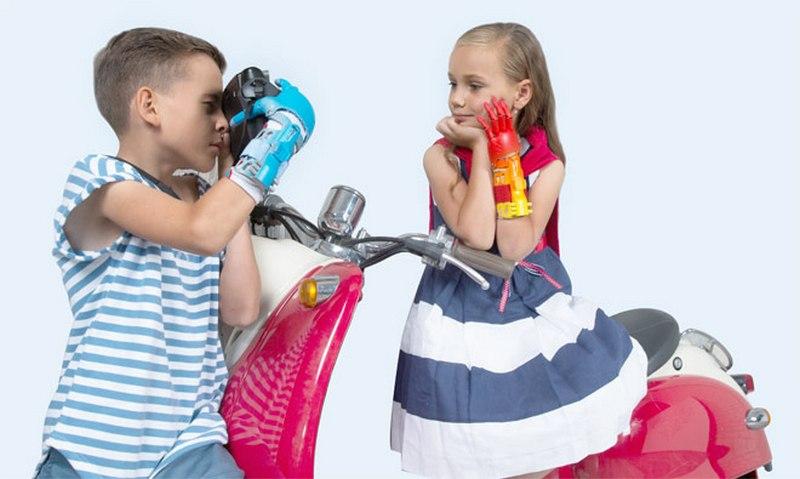 Неограниченные возможности: дети из Беларуси получат современные бионические протезы