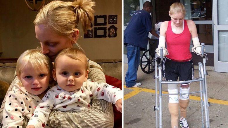 Эрика Тамбрини: Без рук и ног вышла замуж, родила двоих детей и построила успешную карьеру
