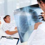 Как лечить коронавирусную пневмонию дома? Пульмонолог дает простые советы