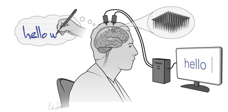 Иллюстрация, изображающая базовую концепцию системы. Фото: Shenoy lab & Erika Woodrum