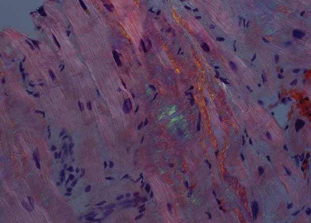Halatchev et al. / Journal of Thoracic Disease, 2018