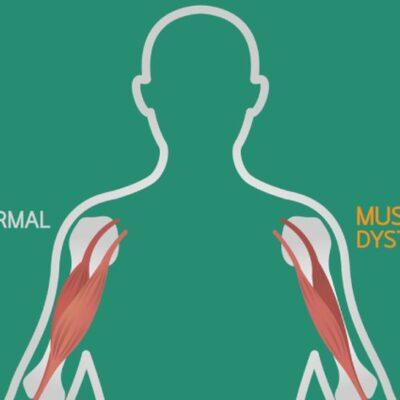 Мышца под прицелом. Что собой представляет миопатия Дюшенна?